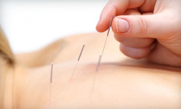 Point Del Mar Acupuncture - Del Mar Heights: $40 for Consultation and Acupuncture at Point Del Mar Acupuncture ($120 Value)