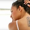Up to 79% Off Laser-Tattoo Removal in Glendale