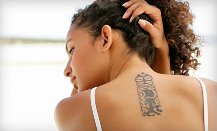 Laser-Tattoo Removal Treatment for up to 9 Square Inches (up to a $200 value) - Advanced Laser Clinics in Glendale