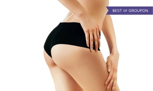 Beverly Hills Institute of Plastic Surgery: $8,495 for a Brazilian Butt Lift at Beverly Hills Institute of Plastic Surgery ($15,000 Value)