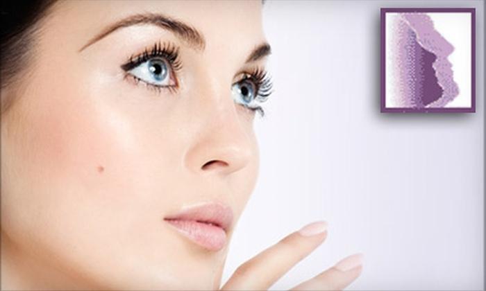 Coastal Facial Plastic Surgery - Mount Pleasant: One or Three Parisian Peels at Coastal Facial Plastic Surgery in Mount Pleasant