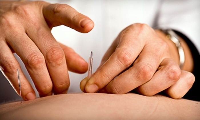 Acupuncture of Iowa - Lucas: $37 for a 60-Minute Balancing Acupuncture Session at Acupuncture of Iowa ($75 Value)