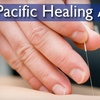 Pacific Healing Arts - Los Gatos: $35 for Consultation and Acupuncture Treatment at Pacific Healing Arts