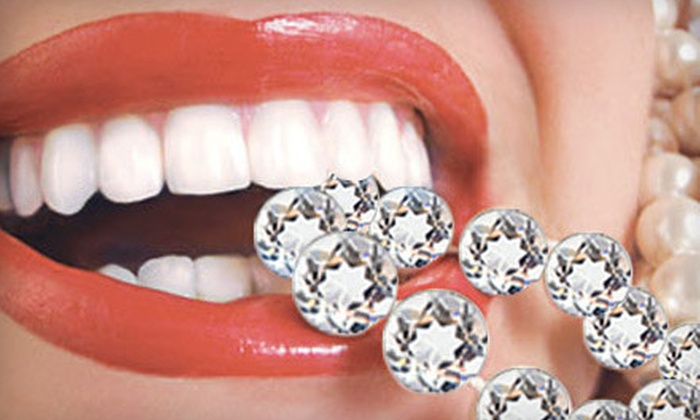 Bling Dental: $59 for an In-Home Icing Teeth Whitening from Bling Dental ($199 Value)