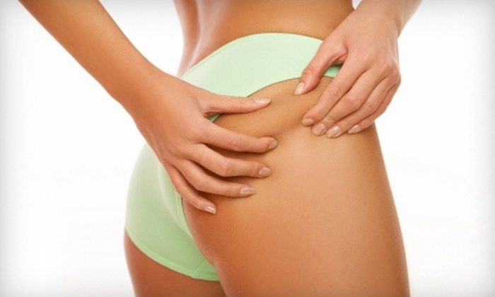 Cadence's Body Contouring & Health Spa - Asheville: $142 for Three Endermologie Cellulite Treatments at Cadence's Body Contouring & Health Spa ($285 Value)