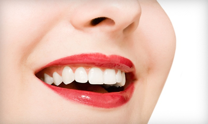 Whitening Fast - Downtown: $79 for a 20-Minute Advanced Whitening Treatment at Whitening Fast in Coeur D'Alene ($160 Value)