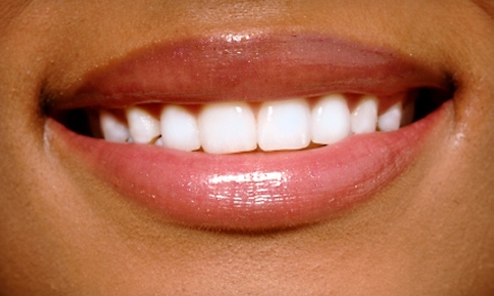 The Smile Design Center of Dr. Myron Kellner - Mays Chapel: $125 for Zoom! Teeth-Whitening Treatment at The Smile Design Center of Dr. Myron Kellner in Lutherville ($400 Value)
