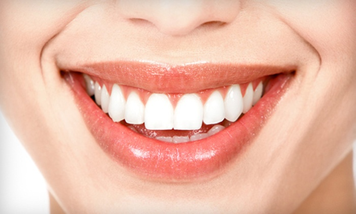 Smile Splendor - North Charleston: $79 for a Teeth-Whitening Package with In-Office Treatment at Smile Splendor ($324.90 Value)