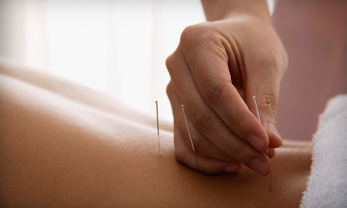 Advanced Acupuncture of Hollywood - Hollywood Hills: $39 for a Consultation, Half-Hour Acupuncture Session, and Massage at Advanced Acupuncture of Hollywood ($145 Value)