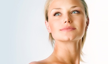$219 for Up to 20 Units of Botox and a Photofacial at Calista Skin & Laster Center ($409 Value)