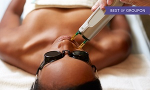 Sculpture Total Skin Care: Laser Hair Removal for Small, Medium, Large, or Extra-Large Area at Sculpture Total Skin Care (Up to 82% Off)