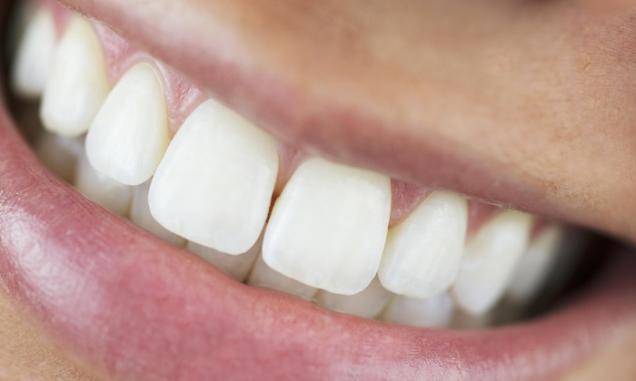Bright Smile Solutions - Bright Smile Solutions: Up to 50% Off In-Office Laser Teeth Whitening at Bright Smile Solutions