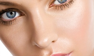 Estheticlub: One, Three, or Six Chemical Peels at Estheticlub (Up to 88% Off)