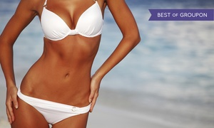 Planet Beach: One Month of Unlimited Tanning or Two or Four Mystic Tans at Planet Beach (Up to 57% Off)