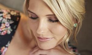 1 o 2 sesiones de minilifting facial DermoFibroLifting desde 79,00 € en Clinica Munich