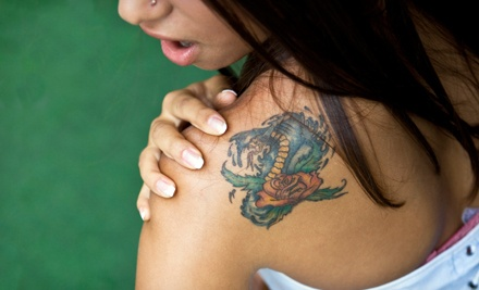 Three Laser Tattoo-Removal Sessions for an Area Up to 3, 6, or 9 Square Inches at Dr. Tatt2BGone (Up to 84% Off)