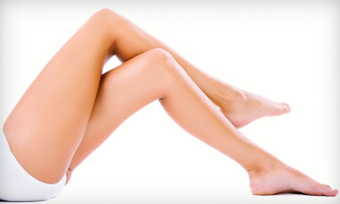 Optima Vein Care - Multiple Locations: One or Two Spider-Vein Treatments with an Ultrasound at Optima Vein Care (Up to 85% Off)