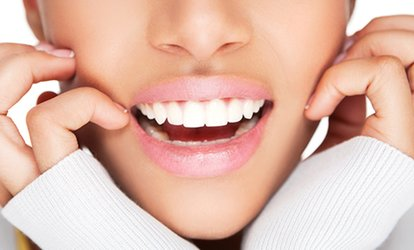 image for Zoom Teeth Whitening Plus a Scale and Polish at Puredental (Up to 60% Off)