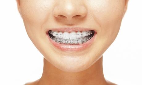 Ortodoncia con brackets metálicos, de porcelana o de zafiro desde 249 € en Grupo Dental Baldent Técnica Oferta en Groupon