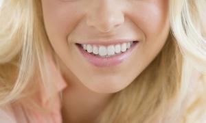 Hallo Beauty: 25 Min. oder 45 Min. kosmetisches Zahn-Bleaching bei Hallo Beauty (bis zu 53% sparen*)