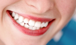 City Dental Centers: Zoom! Whitening Packages with Teeth Cleaning at City Dental Centers (Up to 87% Off). Three Options Available.