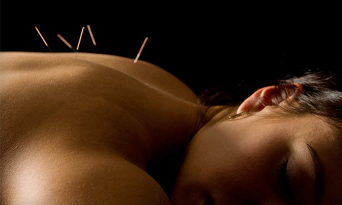 Relief Acupuncture - Three Lakes: One, Two, or Three Private Sessions with Massages, or Two Community Sessions at Relief Acupuncture (Up to 76% Off)