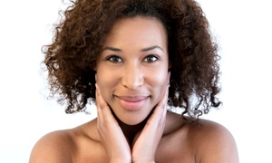 Newport Beach MedSpa: One or Two Microdermabrasion and IPL Treatments at Newport Beach MedSpa (Up to 79% Off)