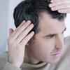 50% Off Hair Restoration - Other