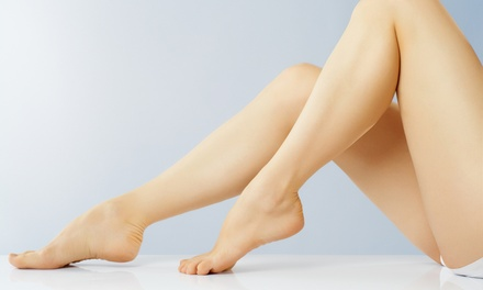 Laser Hair-Removal Treatments on a Small, Medium, or Large Area or the Whole Body at Results Medical Spa (Up to 89% Off)