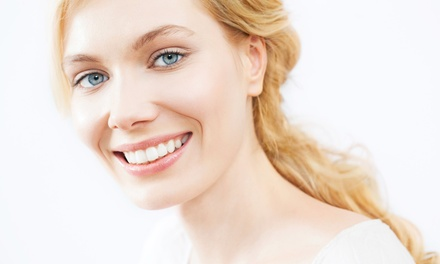 C$99 for a Pearl Teeth-Whitening Session at Unique Look Hair Design (C$250 Value)