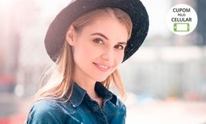 Milena Beauty Care: Milena Beauty Care - Tijuca: 1, 2 ou 3 visitas de limpeza de pele + revitalização facial + peeling de diamante