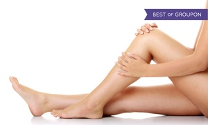 Sculpture Total Skin Care: One or Three 30-Minute Laser Vein-Removal Treatments at Sculpture Total Skin Care (60% Off)