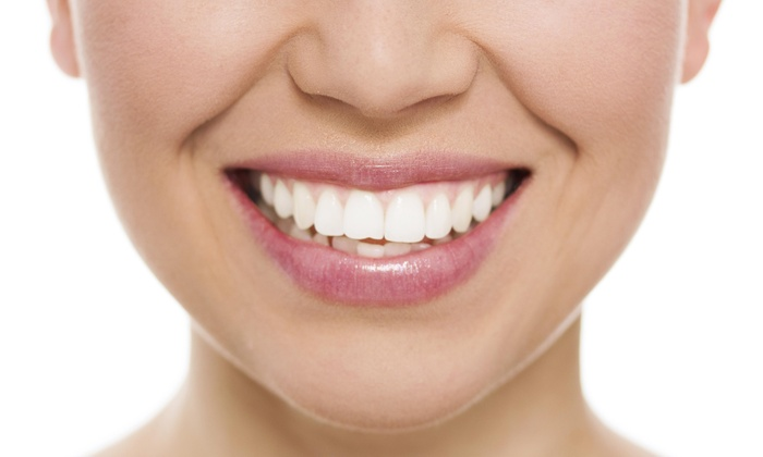 Aesthetic Spa - Virginia Beach: Up to 59% Off Bleach Bright Teeth Whitening Package at Aesthetic Spa