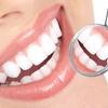 83% Off Laser Teeth Whitening