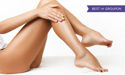 Laser Hair Reduction on One Small, Medium, Large, or Extra-Small Area at Westlake Laser and Medical Spa (Up to $ Off)