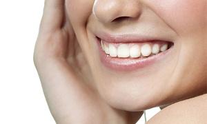 Be Yourself: Limpieza bucal con pulido, fluorización, revisión, radiografía y diagnóstico por 12 €. Tienes 3 centros a elegir