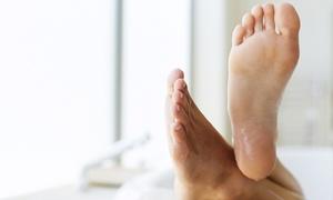 Good Feet: Verruca Treatment from £15 at Good Feet