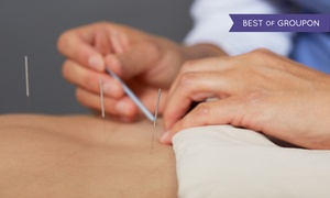 The Wellness Group of America: One or Two 60-Minute Massages with Options for Acupuncture at The Wellness Group of America (Up to 77% Off)