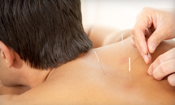Hayley Mermelstein - Amherst: $39 for an Acupuncture and Shiatsu Combination Session from Hayley Mermelstein in Amherst ($80 Value)