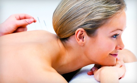 1 Acupuncture Session (up to a $120 value) - Whole-Body Chiropractic in Trumbull