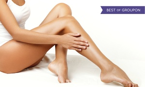 iLAZ: Six Laser Hair-Removal Treatments on a Small, Medium, or Large Area at iLAZ (Up to 83% Off)