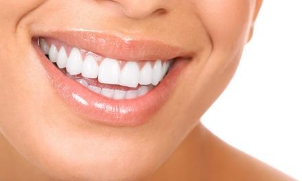 Visita odontoiatrica, pulizia denti e sbiancamento LED in zona Santa Rita (sconto fino a 88%)