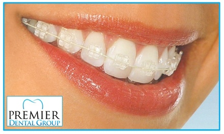 $199 for Orthodontic Package at Premier Dental Group ($500 Value)