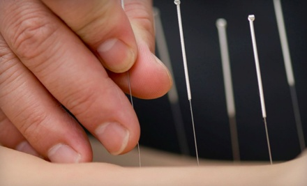 3 Acupuncture Sessions (a $300 value) - Skin Therapy Center in Charleston