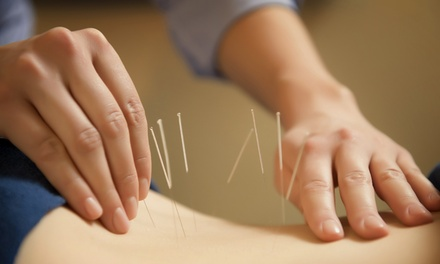 Up to 75% Off Chiropractic acupuncture