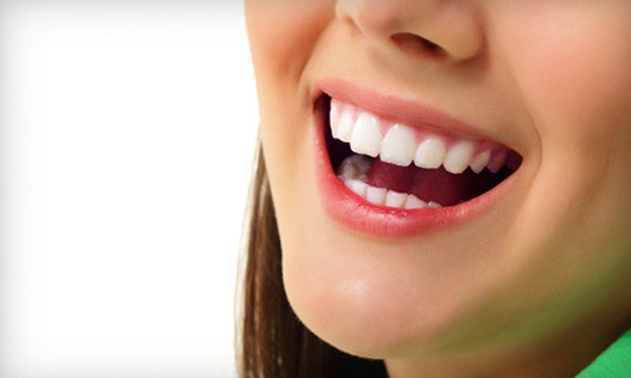 Planet Beach Contempo Spa - University Heights S.C.: $65 for a Teeth-Whitening Treatment and One Spa Service at Planet Beach Contempo Spa ($149.97 Value)