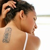 Up to 75% Off Tattoo or Spider-Vein Removal