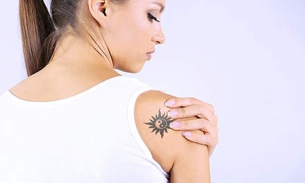 Three Sessions of Laser Tattoo Removal with a Consultation at VGmedispa (Up to 86% Off) (London)