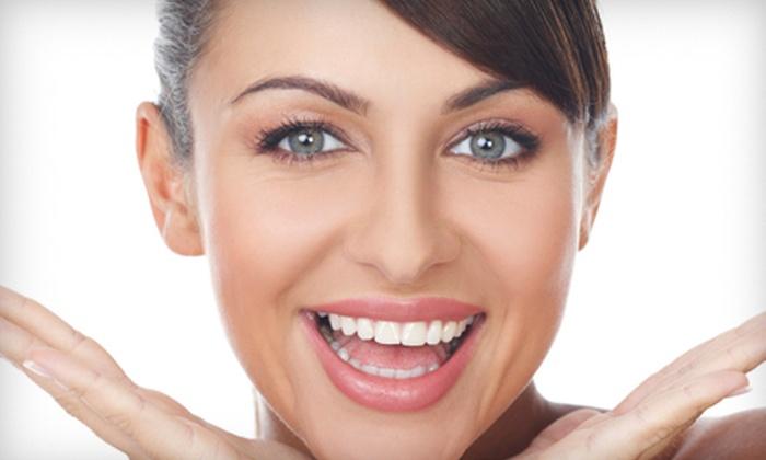 M. Derek Davis, DDS - Amarillo: $99 for a Teeth-Whitening Treatment from M. Derek Davis, DDS ($250 Value)