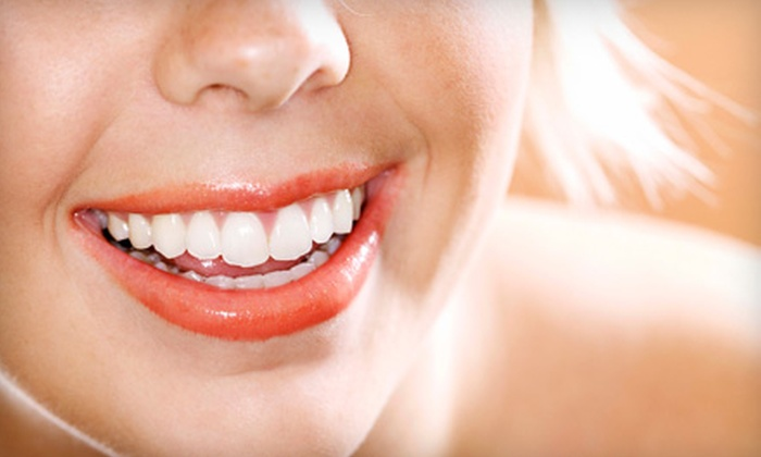 MYA PureO2 - Central London: $49 for a 30-Minute Teeth-Whitening Session at MYA PureO2 ($200 Value)